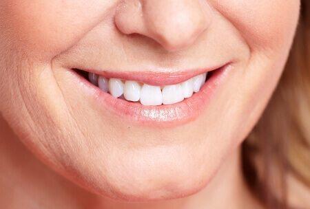 שיניים יפות לאחר טיפול כתר