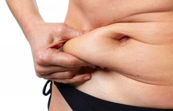 ניתוח מתיחת בטן : כל מה שרצית לדעת