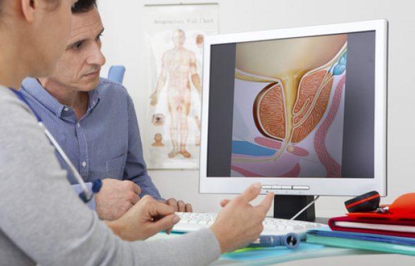 סרטן הערמונית : הניתוח הרובוטי להסרת הערמונית