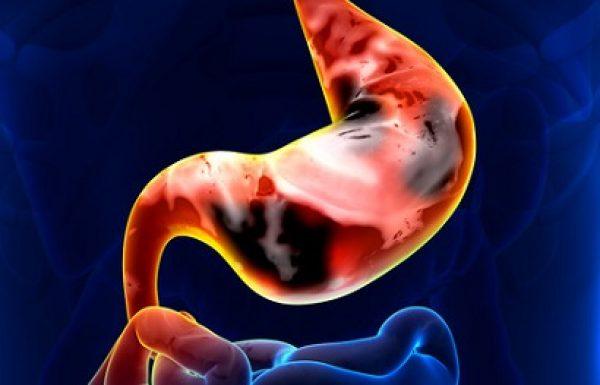 סרטן הקיבה: התסמינים האבחון והטיפולים