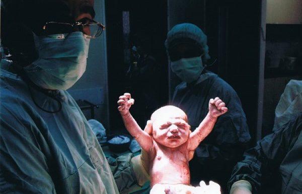 ניתוח קיסרי : כל מה שעלייך לדעת