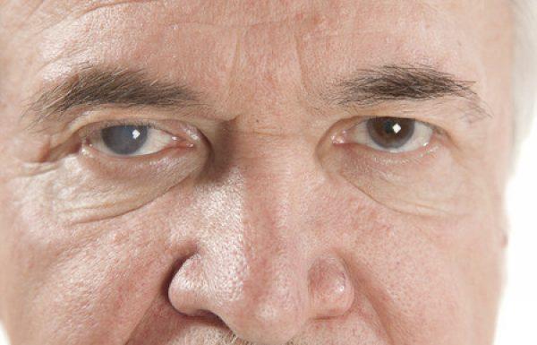 קטרקט(ירוד) : הסימנים והטיפולים לירידה בראייה