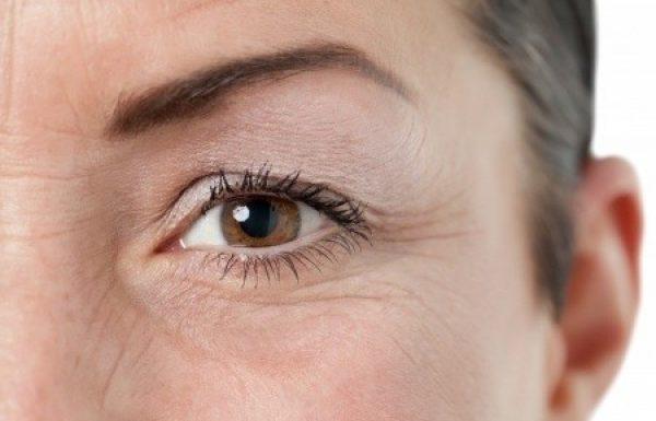 ניתוח הרמת עפעפיים במבוגרים : הסוף למראה עיניים עייף