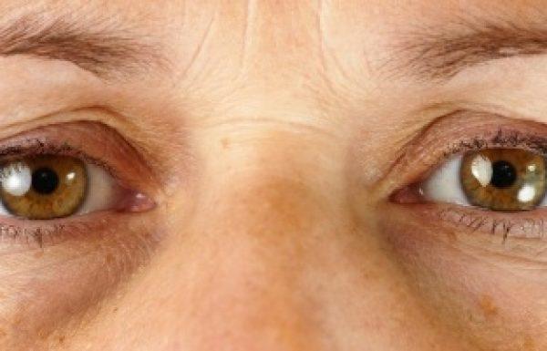 מילוי שקעים מתחת לעיניים ללא ניתוח
