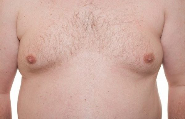 גניקומסטיה : ניתוח הקטנת חזה לגברים
