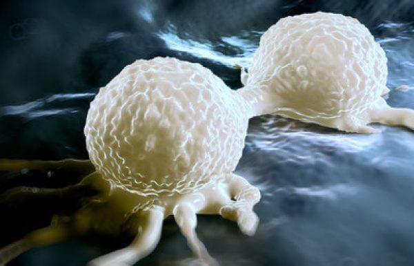 טיפול בסרטן שד גרורתי: שיפור איכות החיים והארכתם