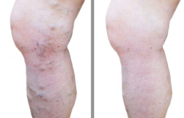 טיפול חדשני: העלמת ורידים בולטים ברגליים בלייזר