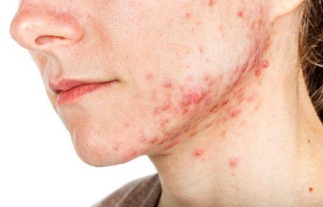 אקנה : הסיבות והטיפולים למחלת העור הנפוצה