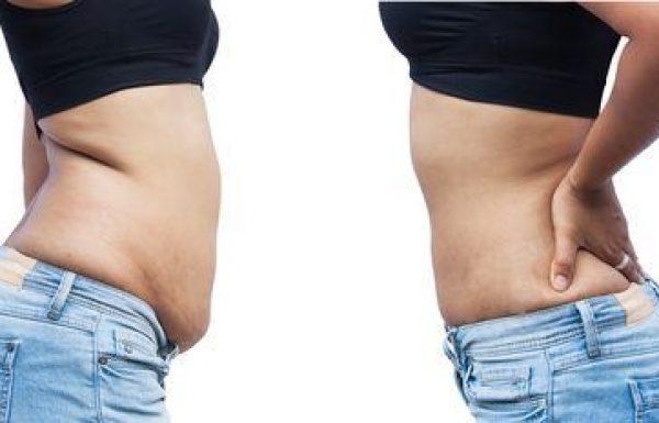 שאיבת שומן : טכנולוגיה חדשנית בלייזר