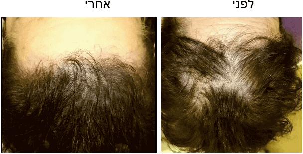 קעקוע רפואי שיער אינה בן