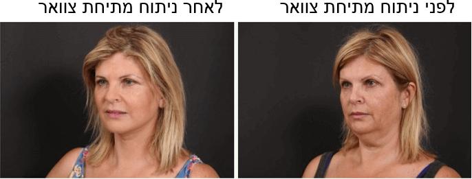 """לפני ואחרי מתיחת צוואר ד""""ר ליאורה הולנדר"""
