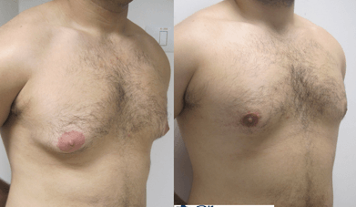 ניתוח גניקומסטיה