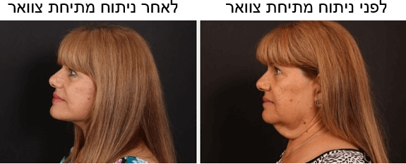 """לפני ואחרי ניתוח מתיחת צוואר ד""""ר הולנדר"""