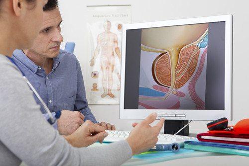 סרטן הערמונית: הניתוח הרובוטי להסרת הערמונית