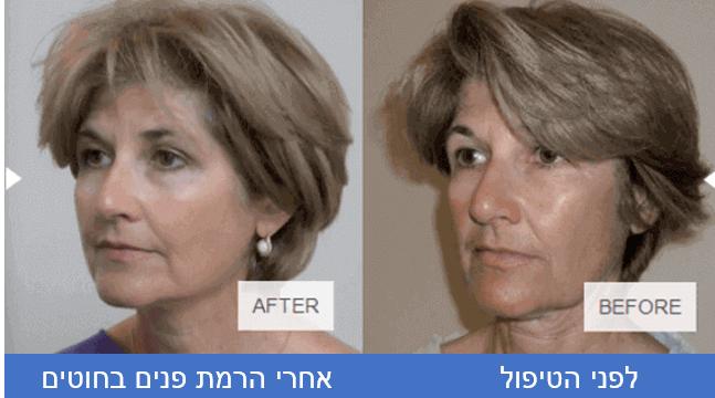 לפני ואחרי הרמת פנים בחוטים