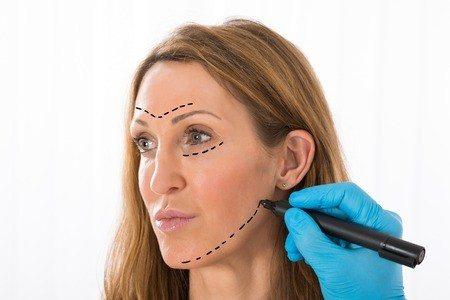 ניתוח מתיחת פנים: למי זה מתאים ומה חשוב לדעת?