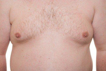 גניקומסטיה חזה נשי בקרב גברים
