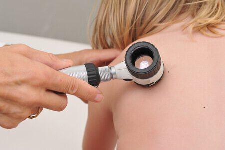 דרמוסקופ אבחון שומות נקודות חן מלנומה