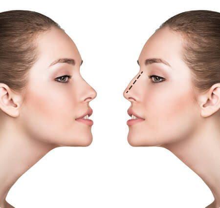 ניתוח אף לפני ואחרי נשים