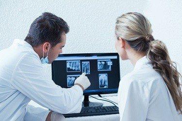 שיני בינה כלואות: כל מה שצריך לדעת