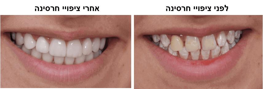 ציפויי חרסינה לפני ואחרי