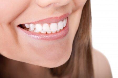 ציפויי חרסינה הלבנת שיניים