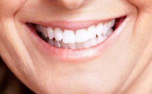 שיניים יפות אשה מבוגרת