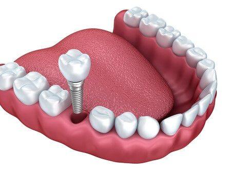 השתלת שן