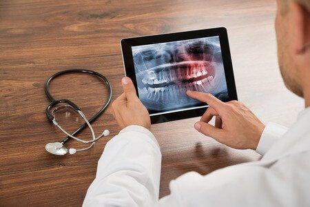 רופא שיניים טאבלט שתלים