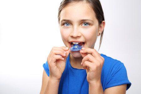 יישור שיניים ילדים
