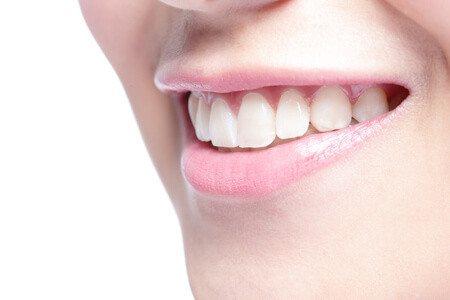 שיניים יפות