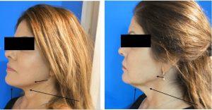 ניתוח מתיחת פנים וצוואר לפני אחרי