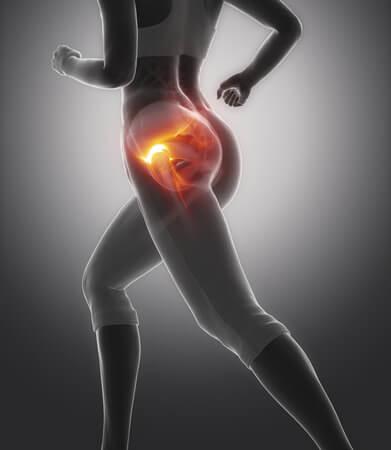 כאבים במפרק הירך