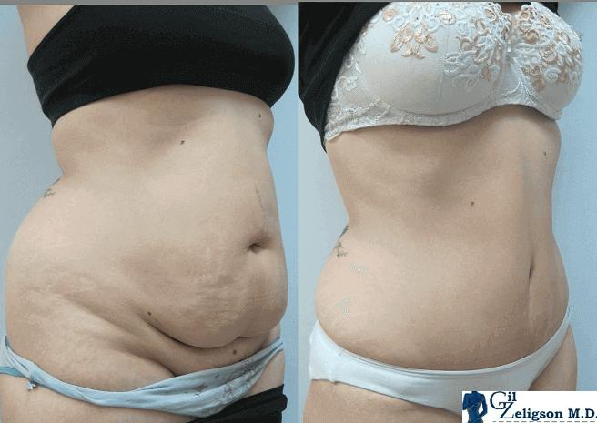 לפני ואחרי בטן זליגסון