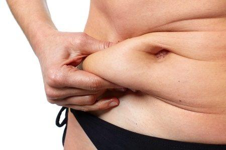 ניתוח מתיחת בטן: כל מה שרצית לדעת