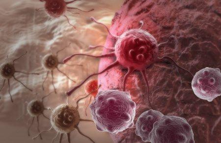 סרטן קרדיט רגיל