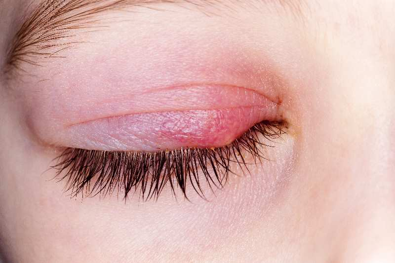 שעורה בעין: נפיחות ואודם בעפעפיים האבחון והטיפולים