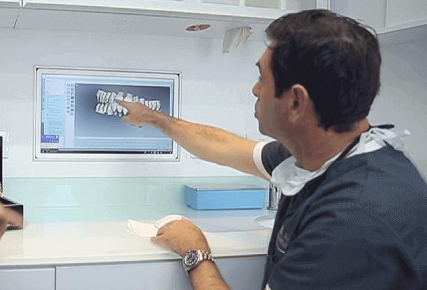 זיידמן יישור שיניים