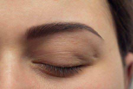 הגיע הזמן לרענן את מראה הפנים שלך: ניתוח עפעפיים
