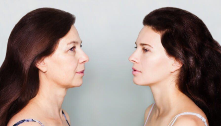 ניתוח מתיחת צוואר ועיצוב קו לסת: לחזור לעצמך