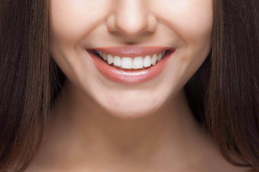 הטיפול החדשני לשיפור מראה השיניים באמצעות ציפויי חרסינה