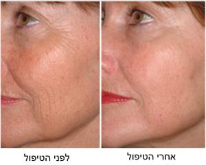 לפני הטיפול ואחרי הטיפול PALOMAR LASER ICON
