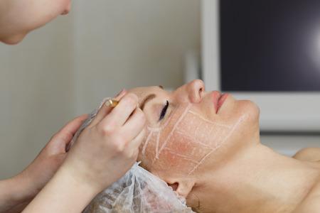 פילינג רפואי בינוני: למראה עור מושלם