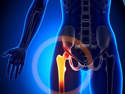 בורסיטיס טרוכנטרית: לאחר ניתוחי החלפת מפרק ירך