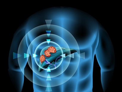 כירורגיה של סרטן הכבד: טכניקת הטיפול החדשה