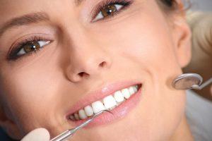 שיניים אשה יפה