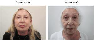 לפני ואחרי טיפול דר עודד רודניצקי