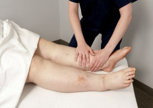 לימפאדמה טיפול עיסוי לימפטי