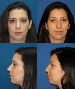 תמונות לפני ואחרי ניתוח אף מדיקו