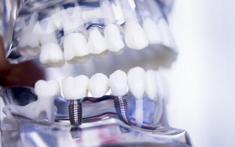 השתלת שיניים בשיטת All on 4: טיפול אחד ותוצאות מידיות